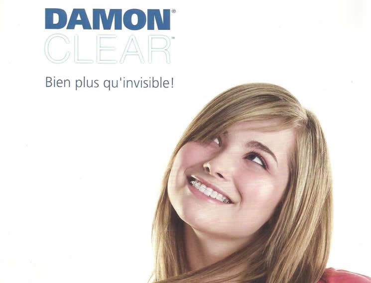 damon_1