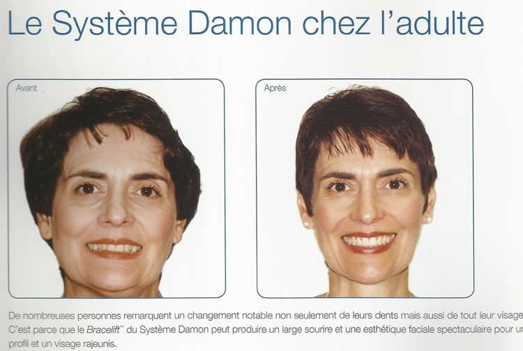 damon_3