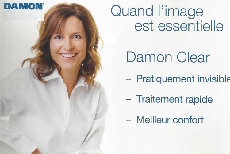 damon_4
