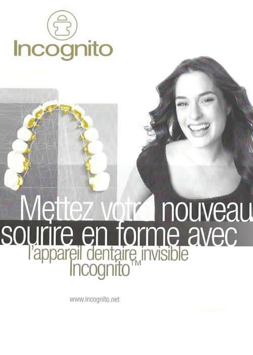 incognito-braces_5